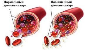Уровни сахара в крови