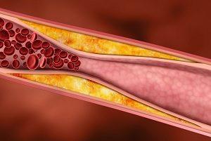 Сужение сосудов из-за холестериновых отложений