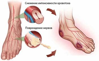 Повреждение кровотока в ногах