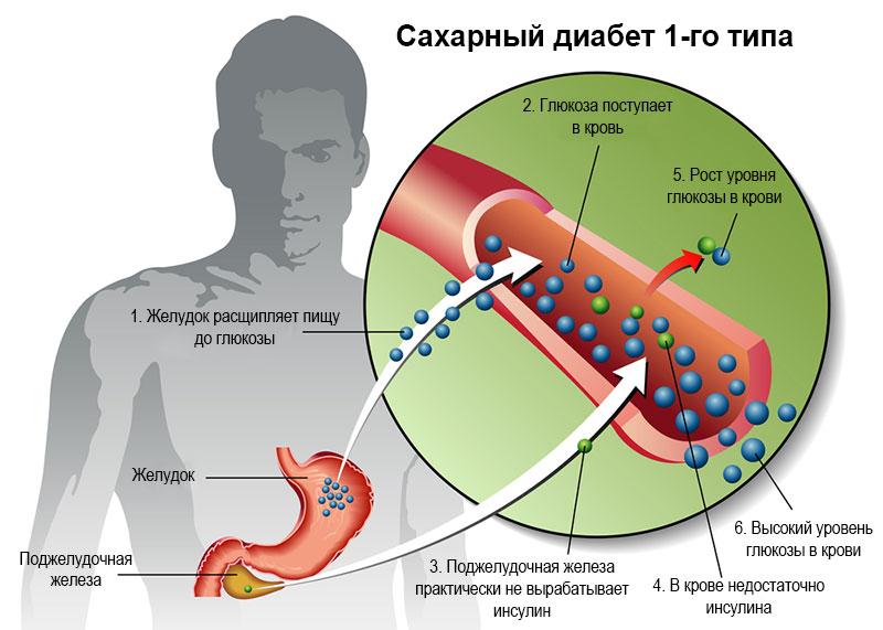 Этиология диабета 1 типа