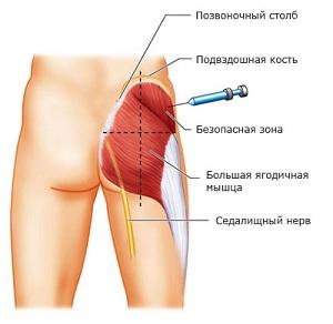 Места для внутримышечного укола
