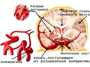Схема повреждения мозга