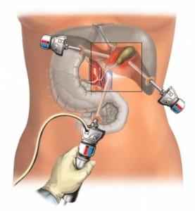 Лапароскопическая биопсия