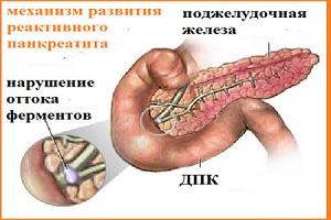 Механизм развития панкреатита