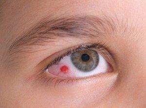 Кровоизлияние на глазу