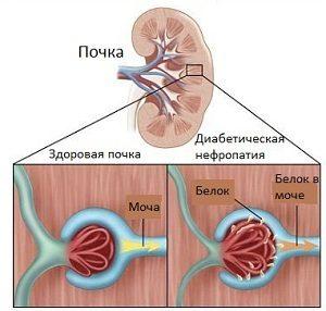 Влияние диабета на почки