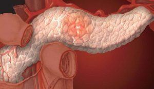 Инсулинома поджелудочной