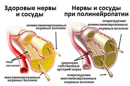 Нервы и сосуды при полинейропатии