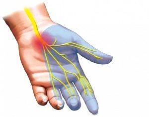 Нервные окончания в руке