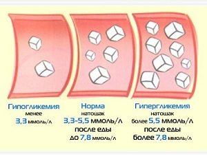 Нормы показателя глюкозы