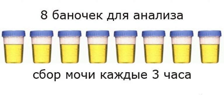 Анализ по Зимницкому