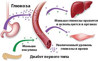 1 тип диабета