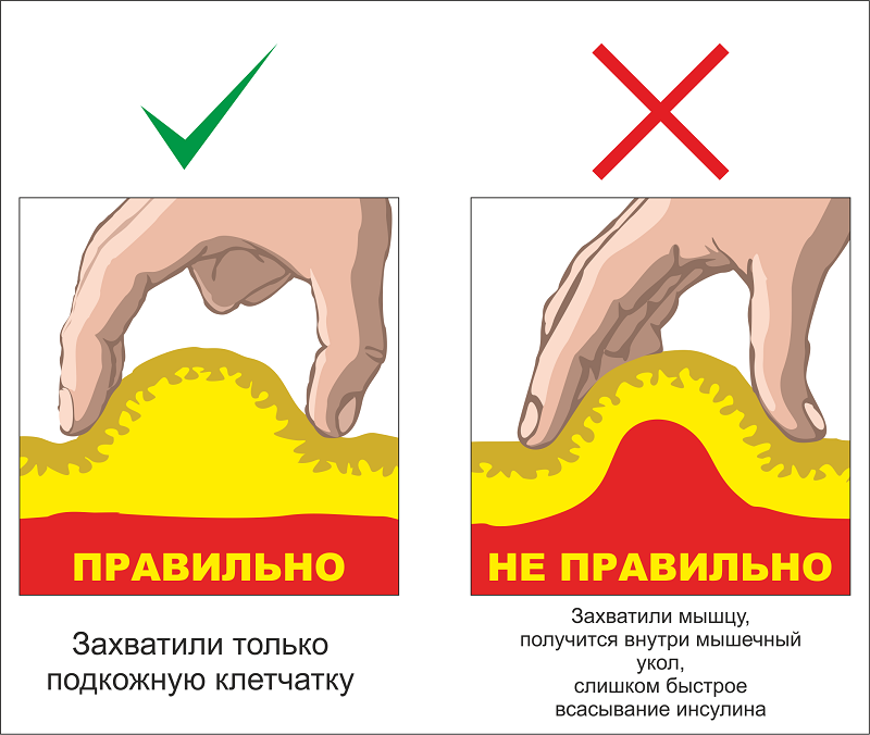 Правильный захват складки кожи