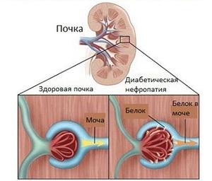 Нефропатия