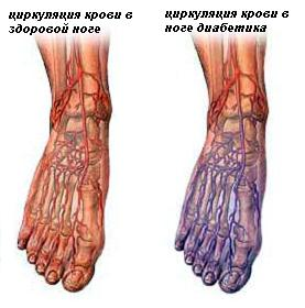 Последствия нарушения циркуляции крови
