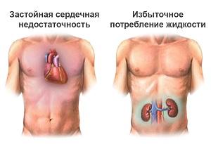 Признаки несахарного диабета