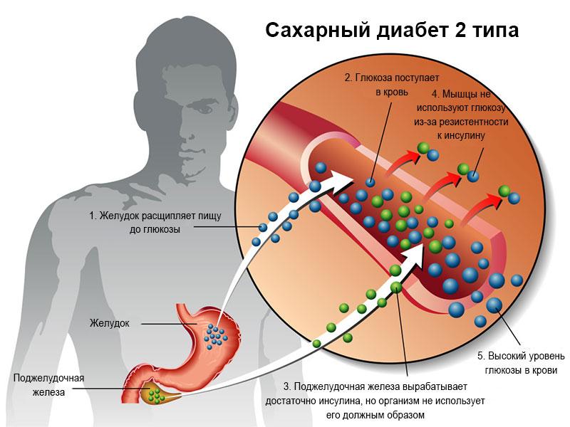 Этиология заболевания