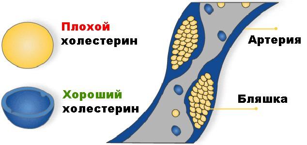 холестерин лпнп повышен у ребенка