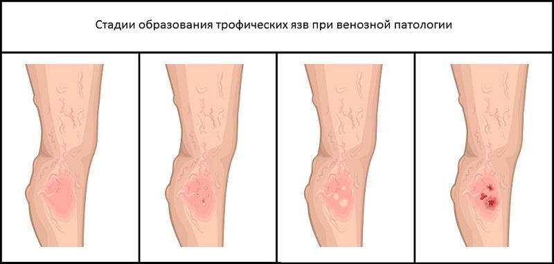 Стадии образования при венозной патологии