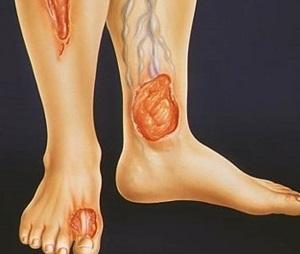 Поражение ног при диабете