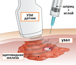 Тонкоигольная аспирационная биопсия