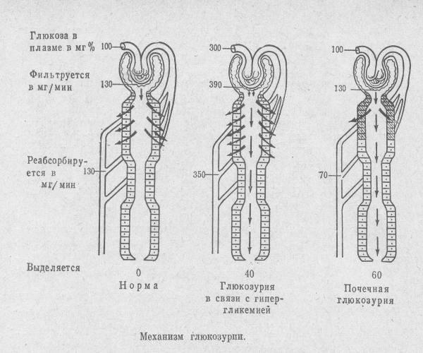 Механизм развития глюкозурии