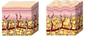 Изменение жировой ткани