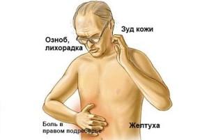 Симптомы рака