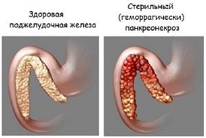 Стерильный панкреонекроз