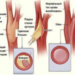 Как лечить атеросклероз сосудов головного мозга и можно ли избавиться от (убрать) холестериновых (атеросклеротических) бляшек