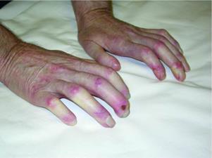 Склеродактилия