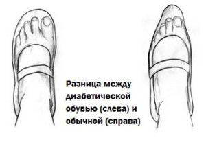 Туфли для диабетика
